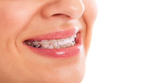 Ortodoncie (rovnátka)